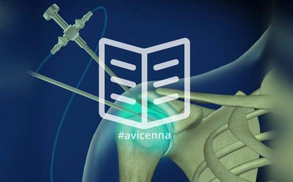 Omuz Hastalıklarının Artroskopi Tedavisi