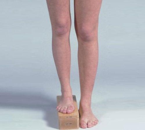 Bacak Eşitsizliği Ameliyatı