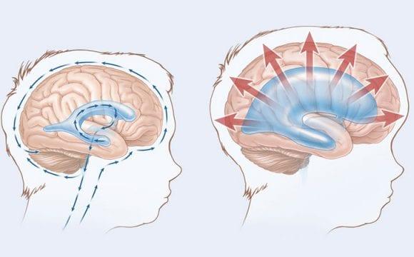 Hidrosefali Nedir? Beyinde Su Toplanması Neden Olur?