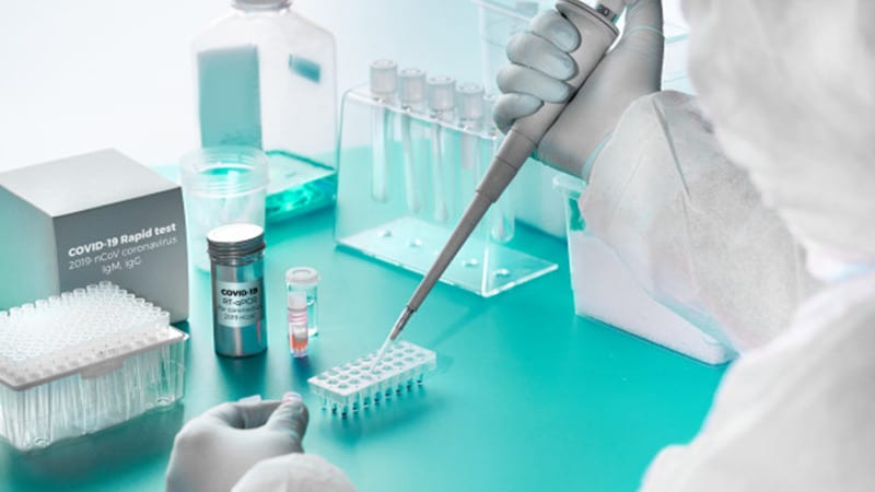 Ataşehir Avicenna Koronavirüs Testleri (COVID-19 Testleri)