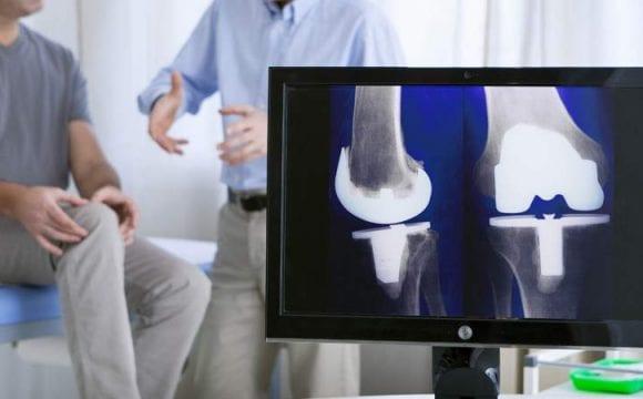 جراحة استبدال الركبة