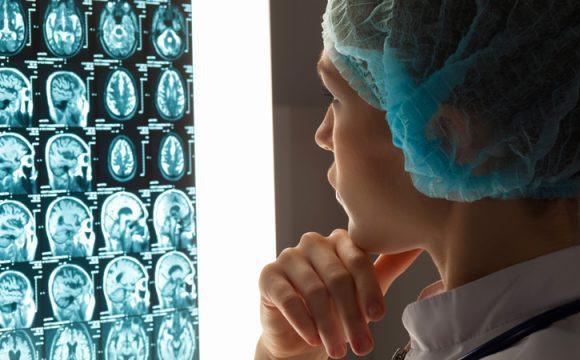 Beyin ve Sinir Cerrahisi Hastalıkları Tanısı