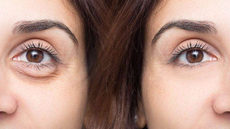 Göz Altı Torbası Ameliyatı Öncesi ve Sonrası Fotoğrafı