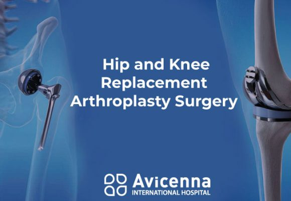 Hip and Knee Replacement – Arthroplasty Surgery